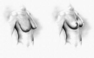 تصویر: سفت کردن سینه ها